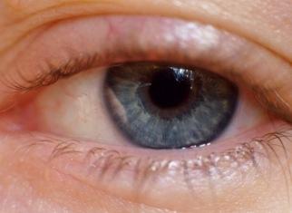 Ojo aquejado de blefaritis