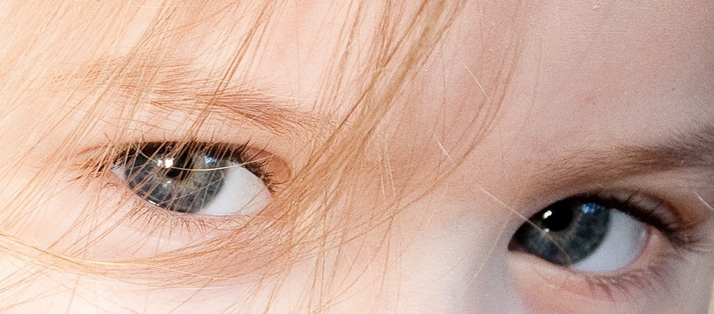 Distrofia macular juvenil