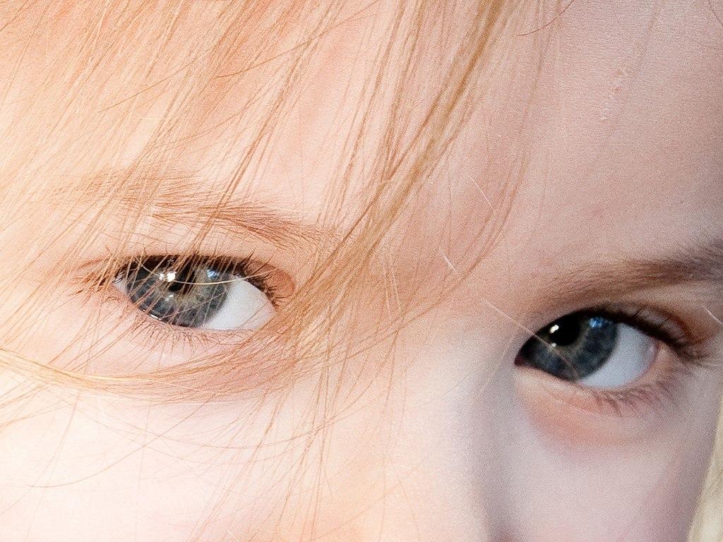Juvenile macular degeneration
