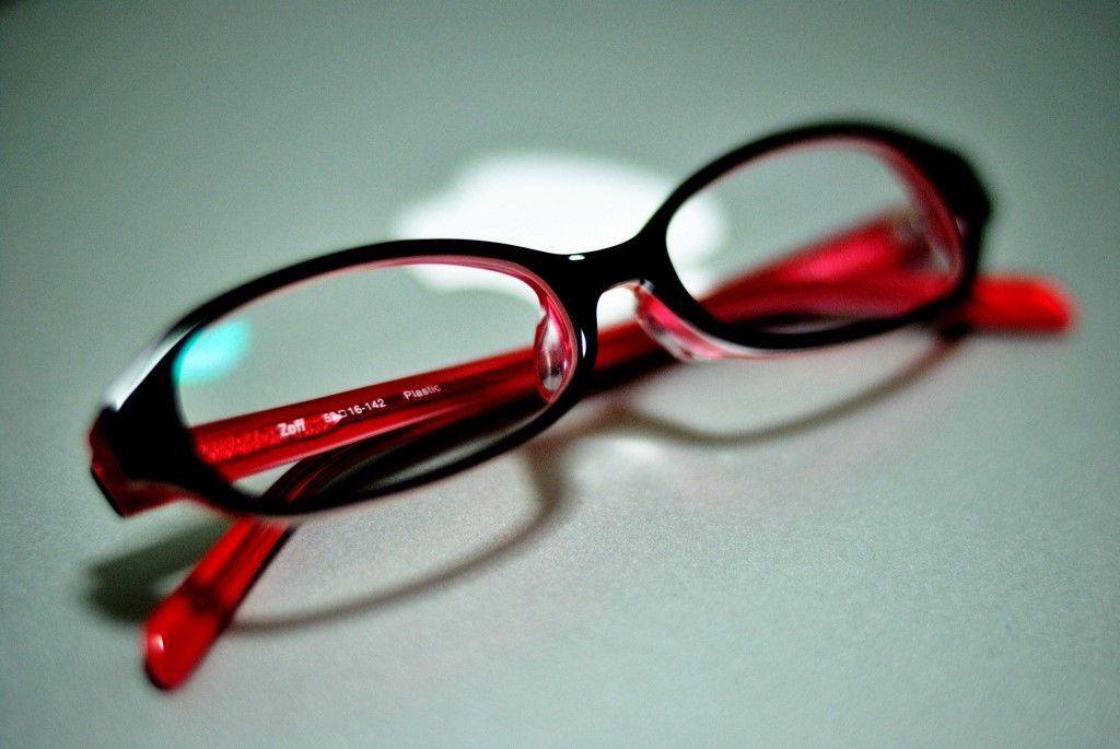 Alta miopia o miopia magna