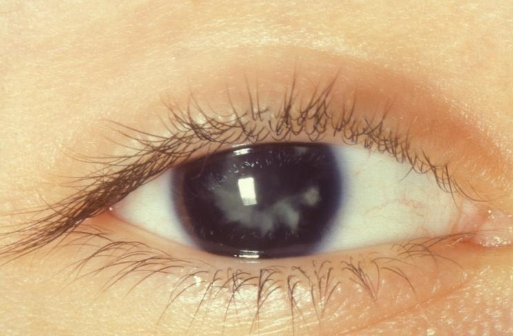 Que c'est une cataracte secondaire?