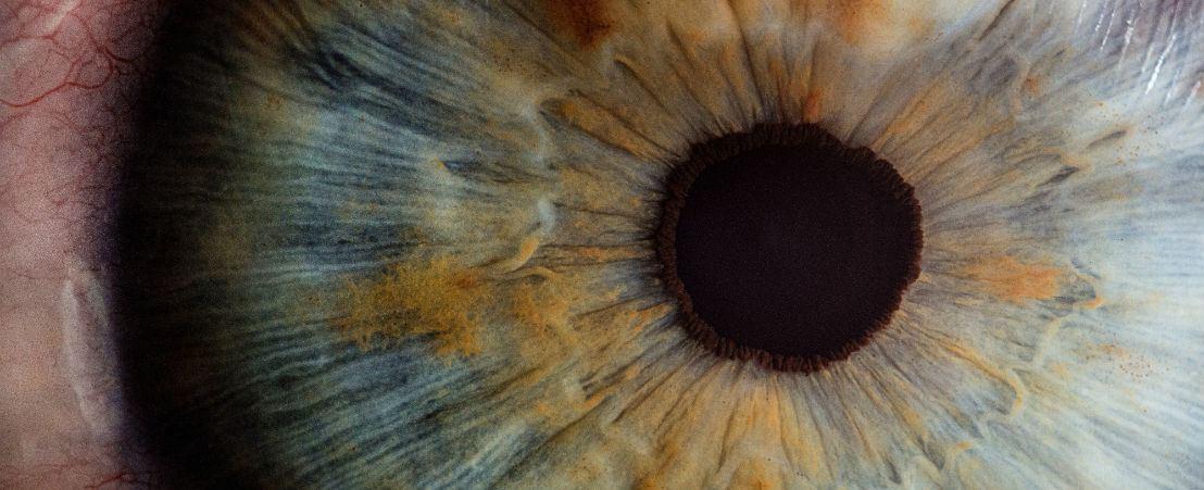 que es un trombo ocular