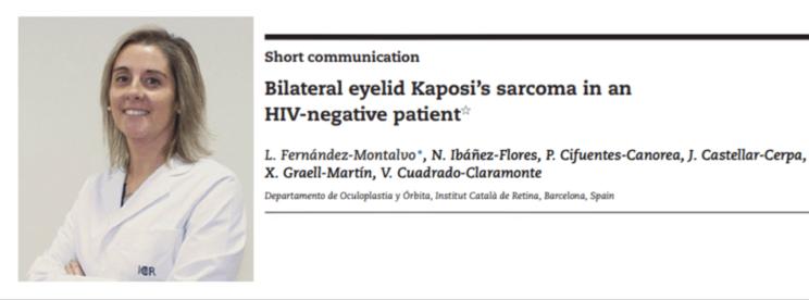 La Dra. Ibáñez publica un artículo sobre el Sarcoma de Kaposi palpebral bilateral en un paciente VIH-negativo