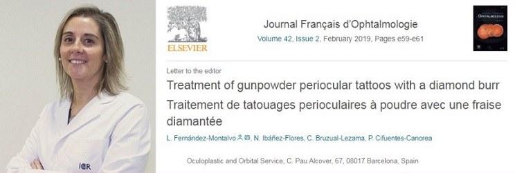 La Dra. Ibáñez publica un artículo sobre el tratamiento de los tatuajes perioculares de pólvora