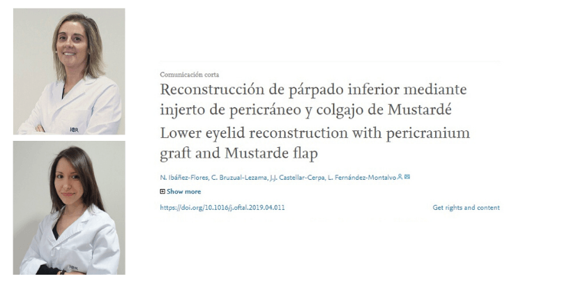 The Department of Oculoplasty publishes an article about a lower eyelid reconstruction