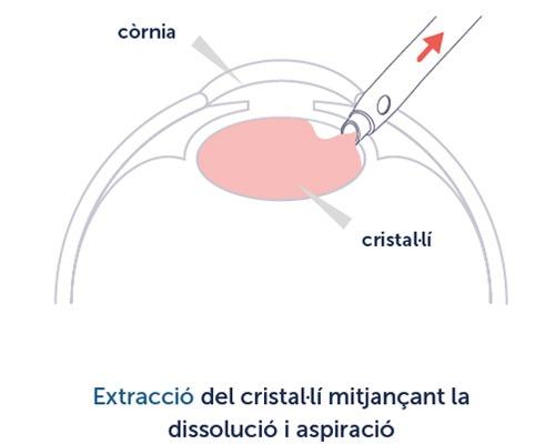 Cirurgia de cataracta