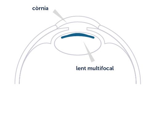 Operació de cataracta
