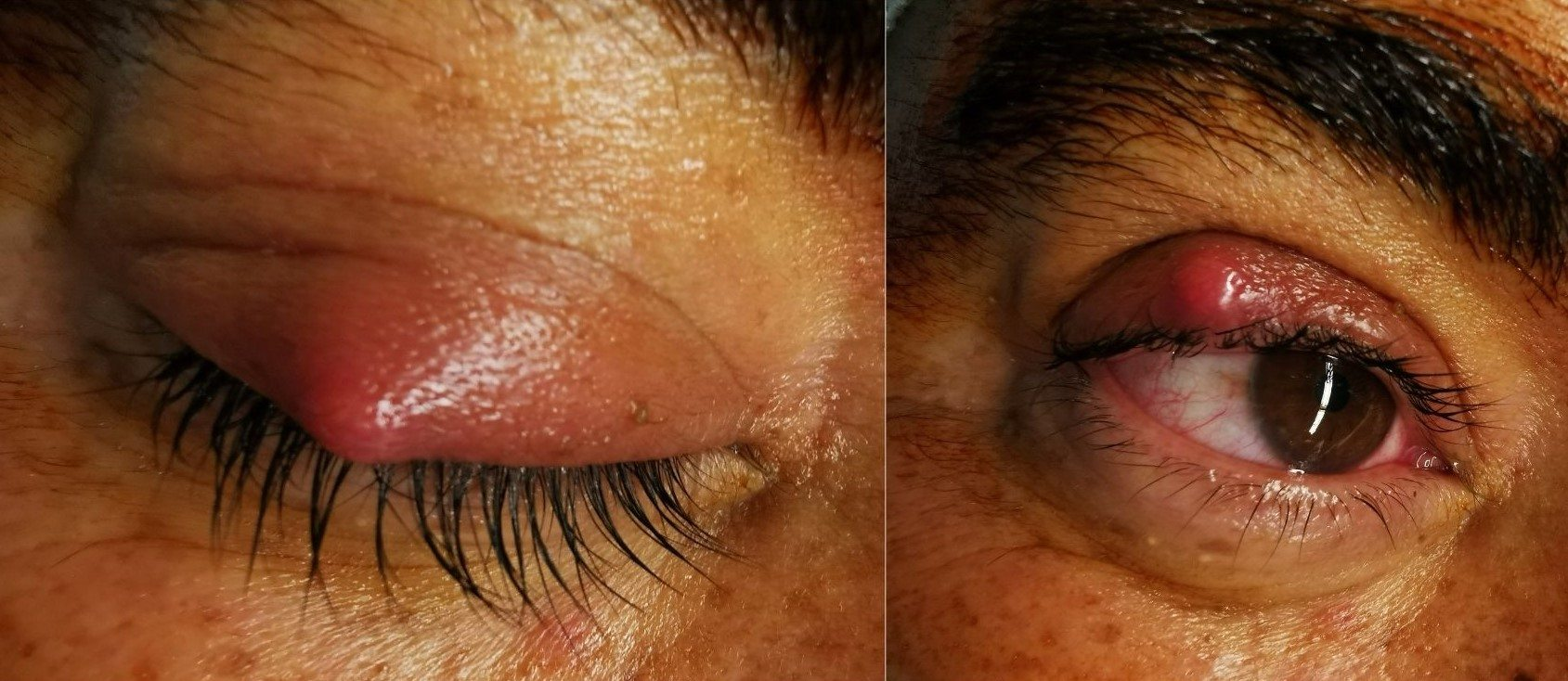 Stye. What is it and how is it treated?