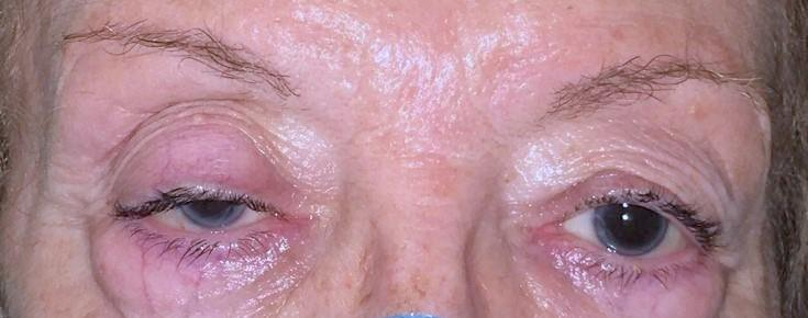 Patient with palpebral ptosis