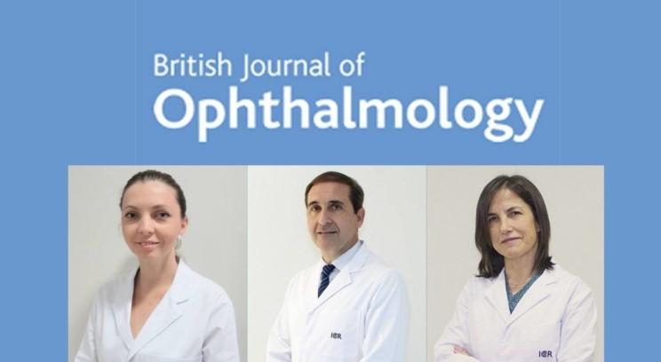 La Dra. Dyrda, la Dra. Gómez y el Dr. Antón publican un estudio para ayudar a la detección precoz de glaucoma