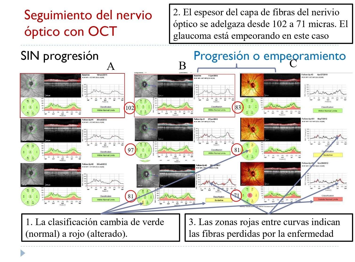 El doctor ha presentado diferentes imágenes obtenidas con OCT sobre la progresión del nervio óptico.