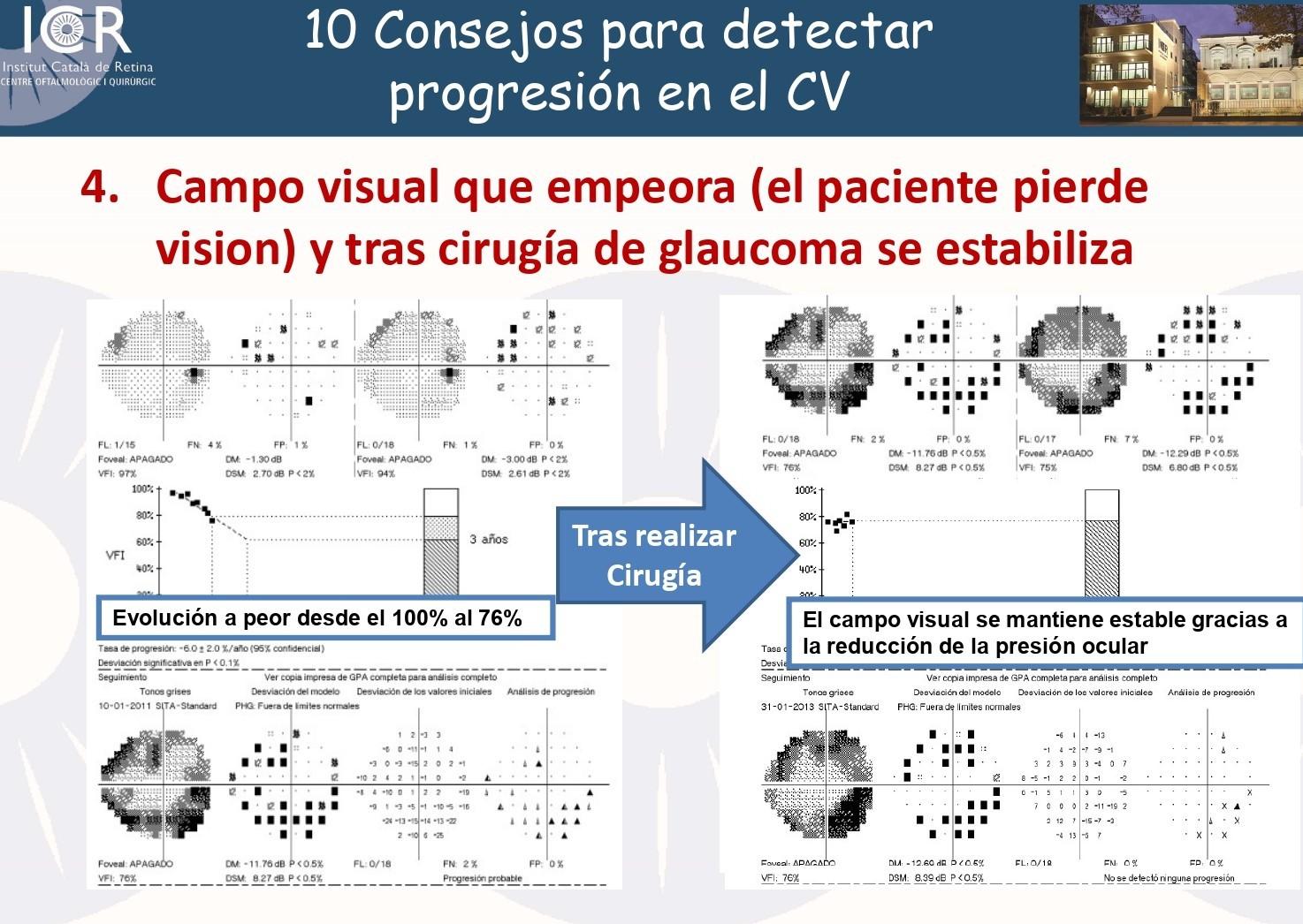 El Dr. Antón ha presentado en el congreso 10 consejos para detectar la progresión de glaucoma