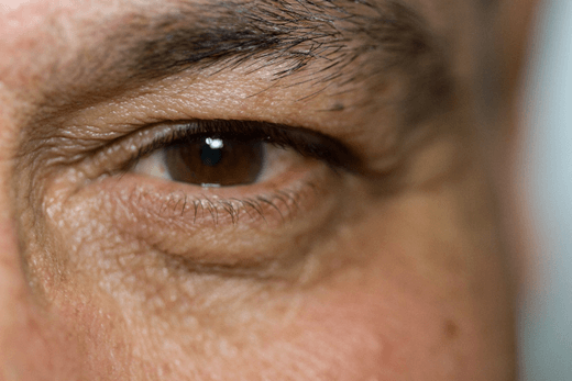 La DMAE suele aparecer en personas mayores de 65 años