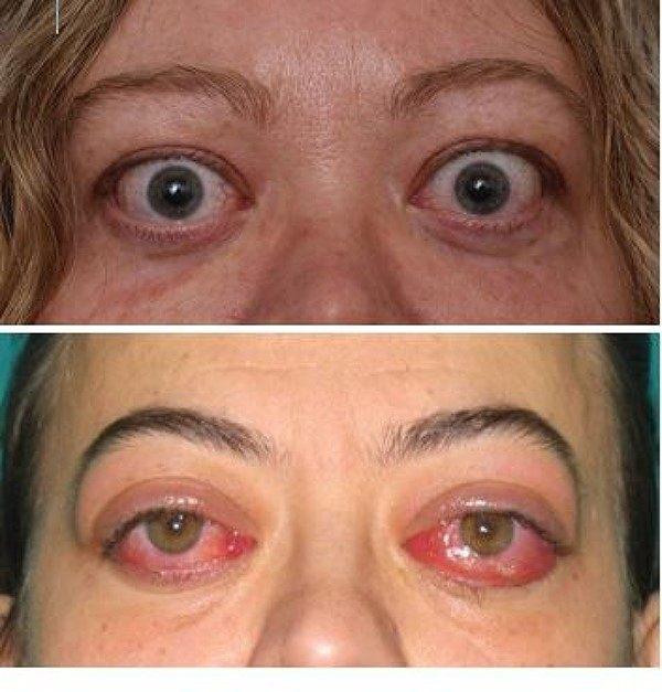 paciente orbitopatía tiroidea web