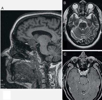 Resonancia magnética de una paciente que presenta un meningioma en el lado izquierdo.