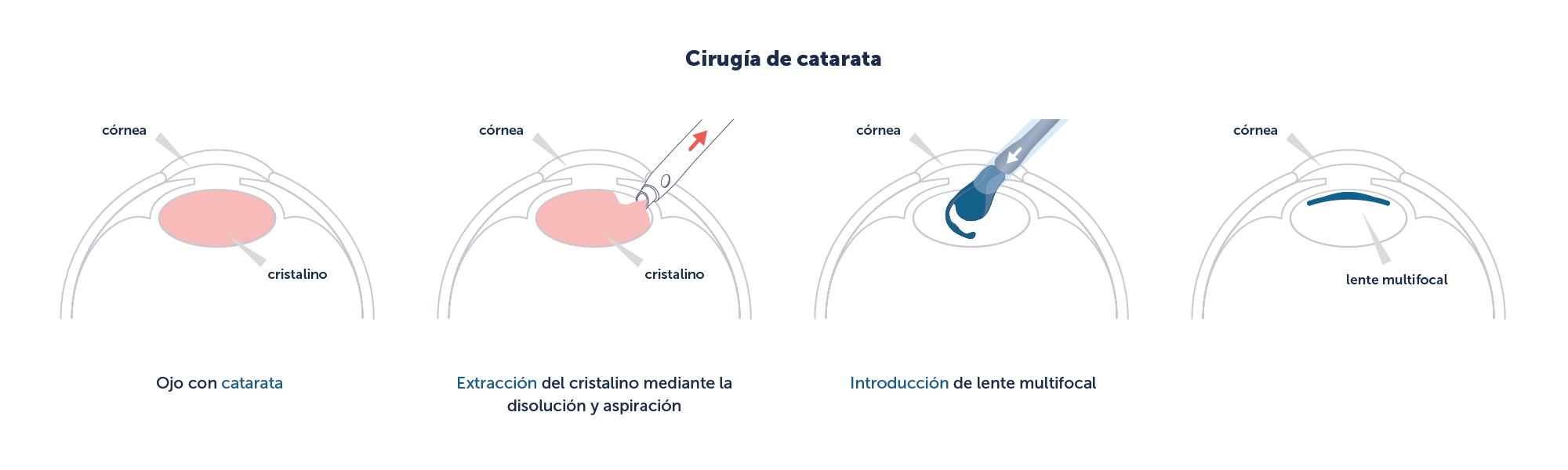 Proceso de implantación de una LIO durante la cirugía de catarata