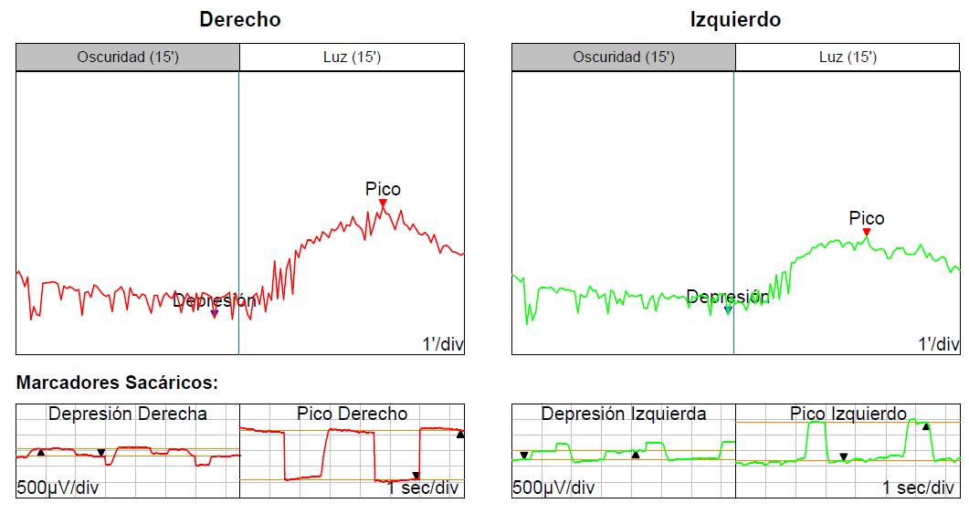 Resultat d'un electrooculograma
