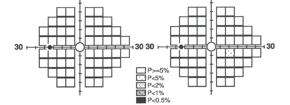 Resultado campimetría FDT Matrix