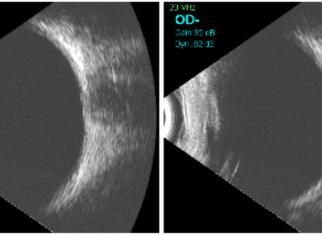 Part del resultat d'una ecografia ocular.