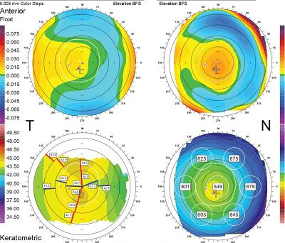 Resultats d'una topografia corneal.
